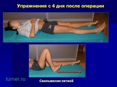 боли в тазобедренном суставе после замены